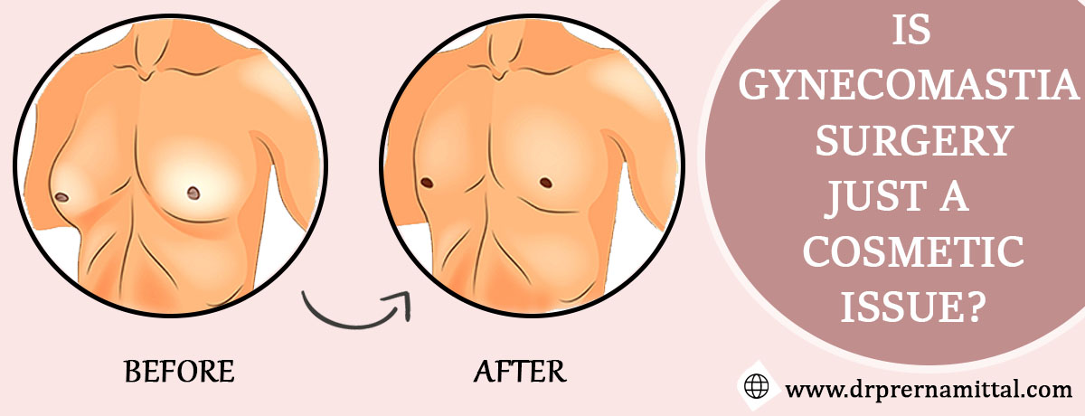 Is Gynecomastia Surgery just a Cosmetic Issue?