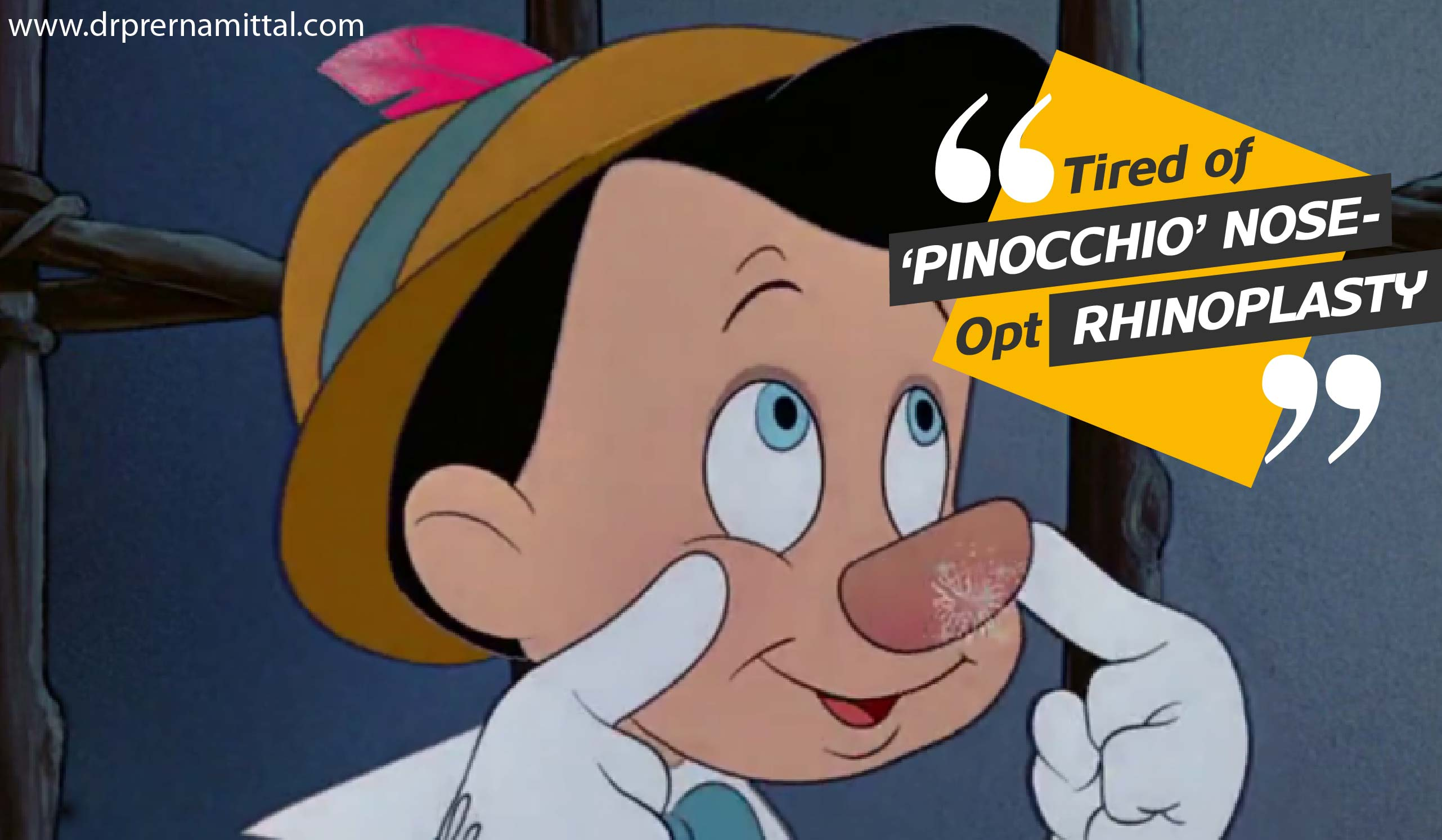 Pinocchio Nose- Rhinoplasty: The New-Age Nose