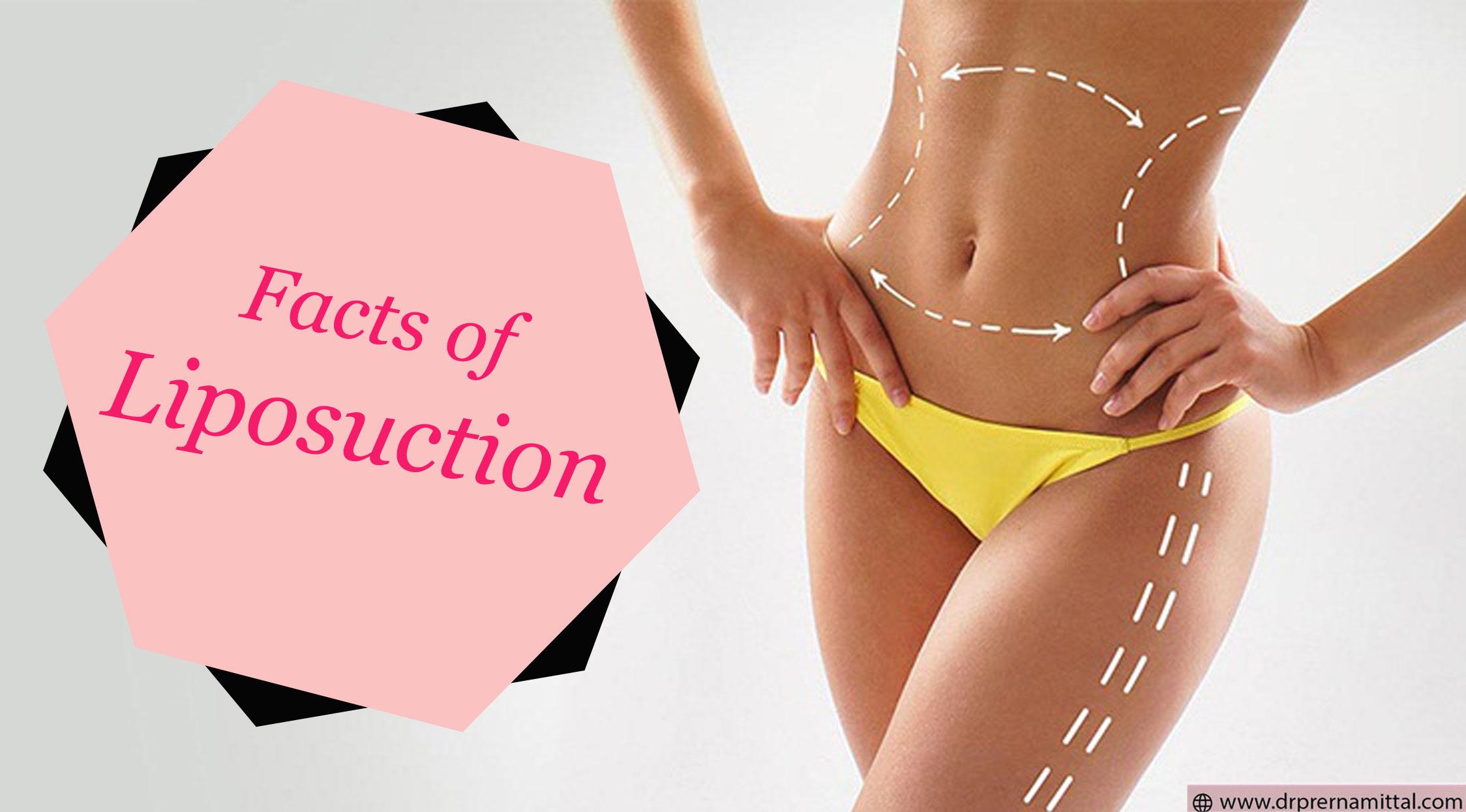 fact of liposuction