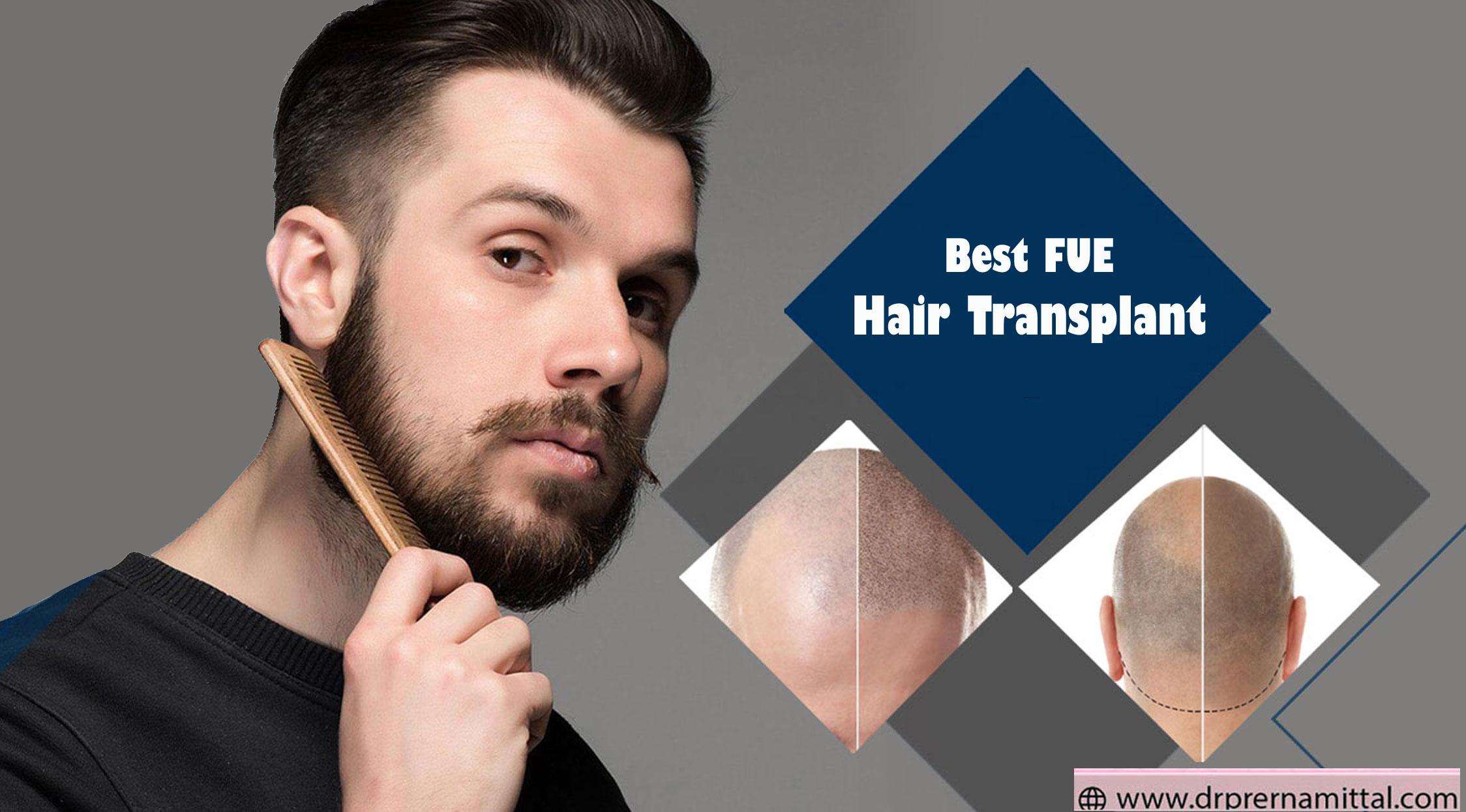 hair-transplant-by-dr.-prer