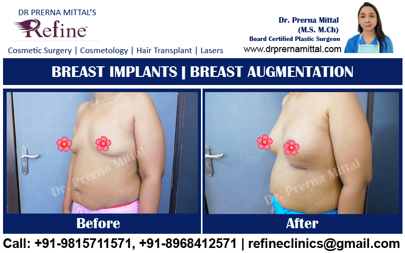 Breast Augmentation in ludhiana