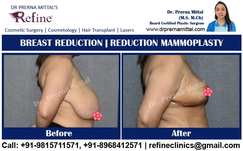 mammaplasty in punjab