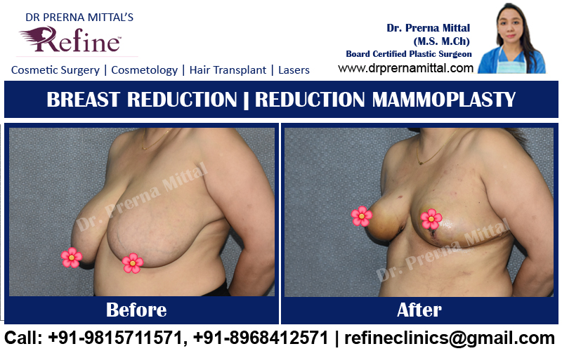 breast reduction surgery in punjab