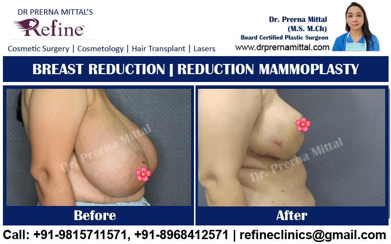 breast reduction cost in ludhiana