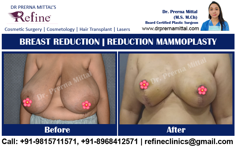 cost of breast reduction in punjab