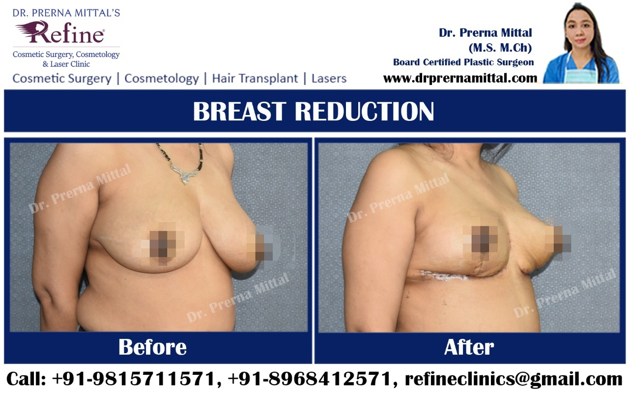breast reduction surgery in India