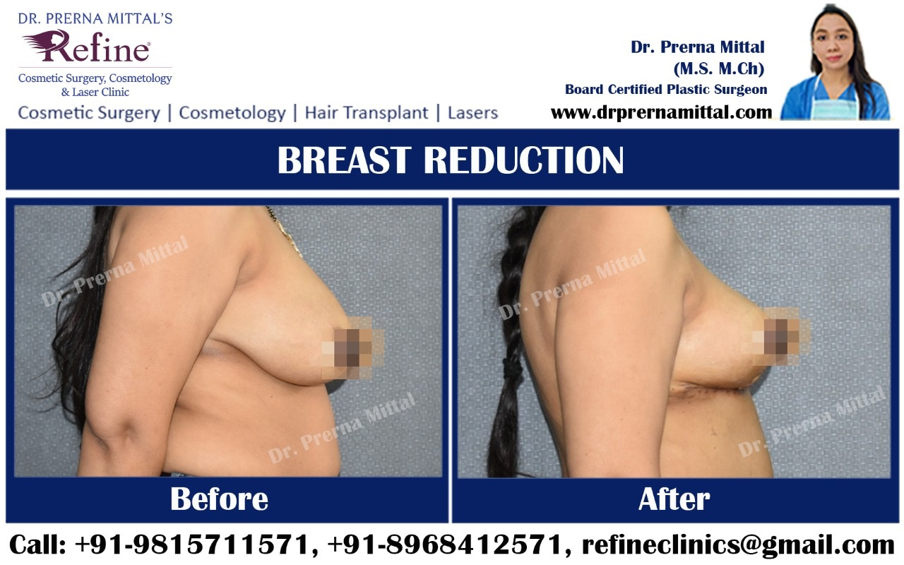 breast reduction cost in India