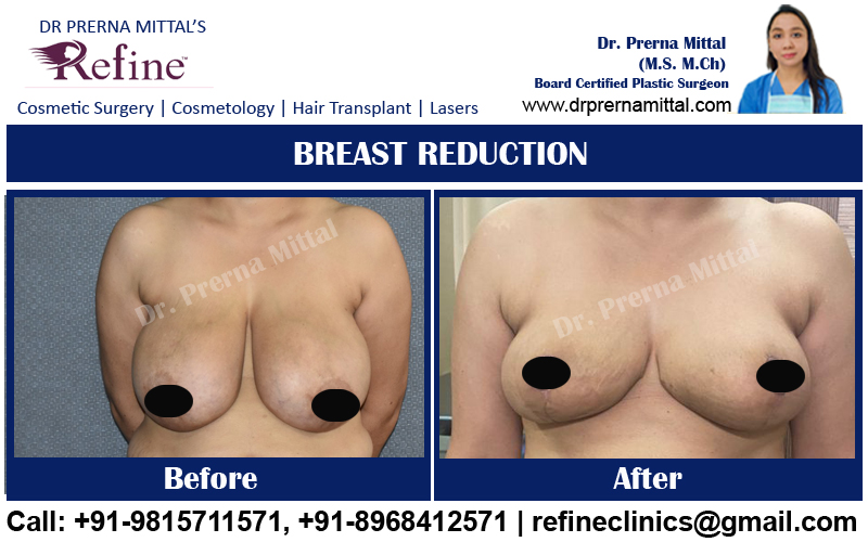 cost of breast reduction in Himachal