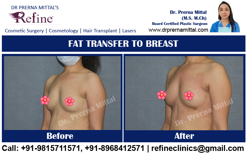 breast enhancement with fat transfer