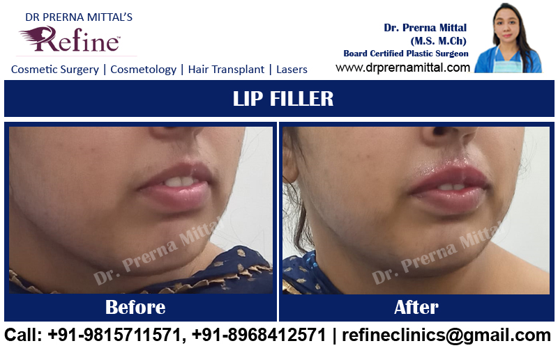 Lip Filler Punjab