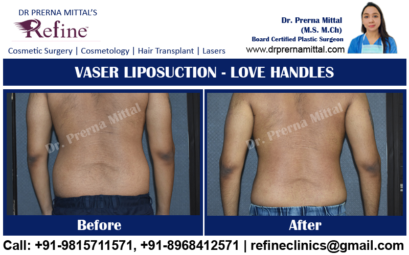 liposuction for love handles in ludhiana