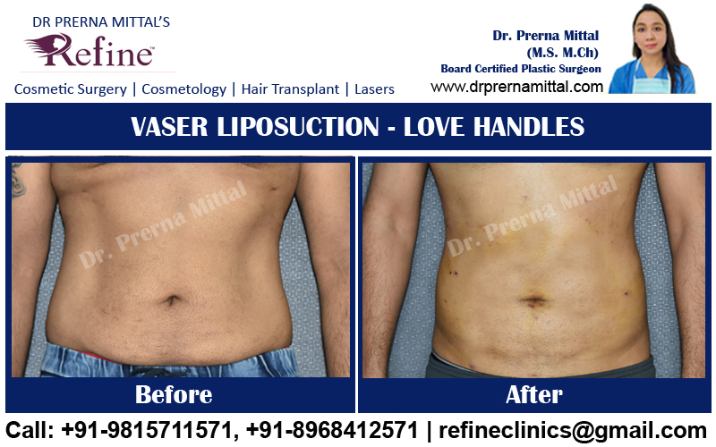 liposuction for love handles in punjab