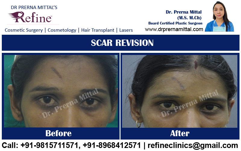 scar revision cost in punjab