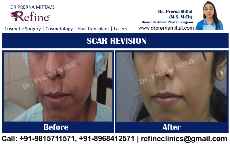 scar revision cost in ludhiana