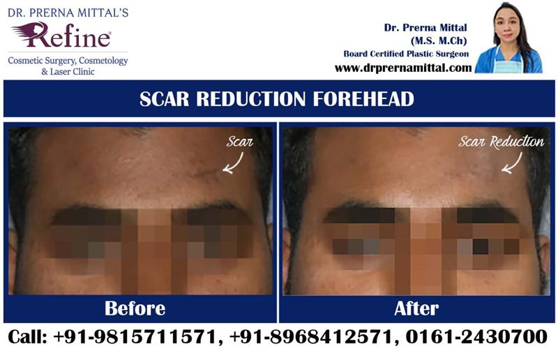 scar correction in punjab