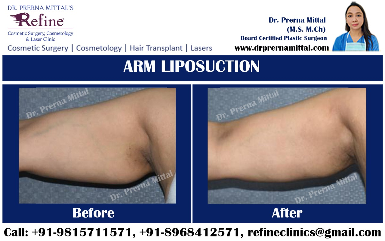 liposuction for arms in punjab