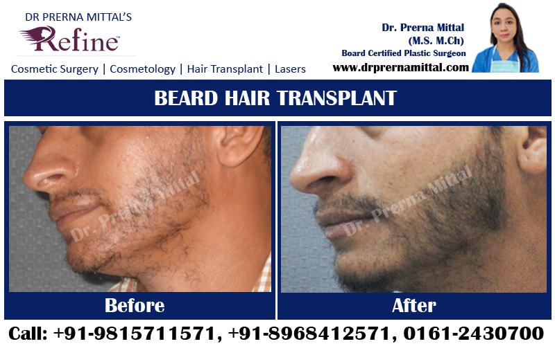 Beard hair transplant punjab