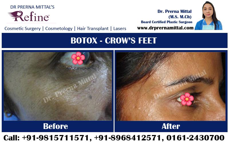 Botox For crows feet punjab