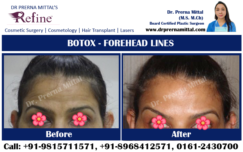 Botox Injection For Forehead Lines