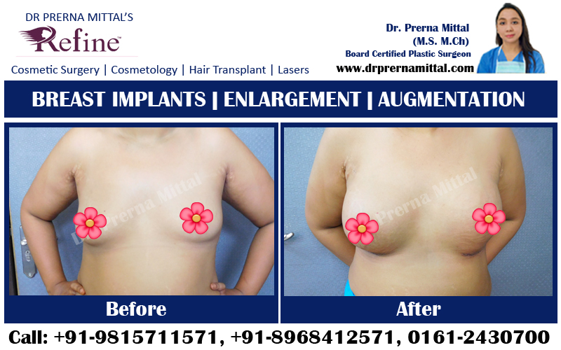 breast implants ludhiana