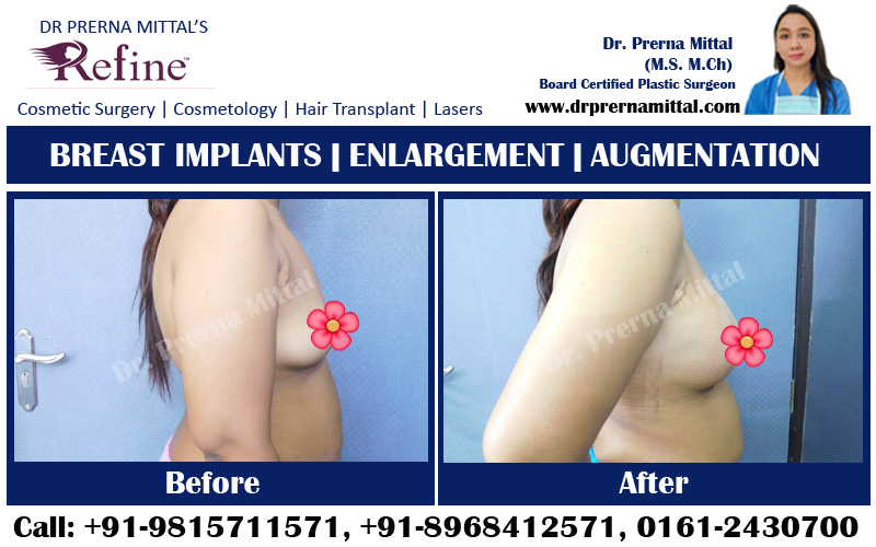 breast enlargement ludhiana