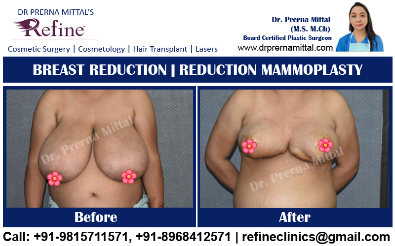 breast reduction surgery in ludhiana