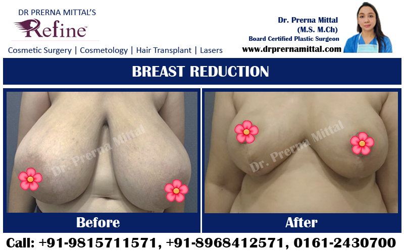 breast reduction in punjab