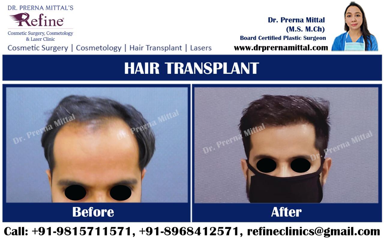 Hair loss treatment in Ludhiana