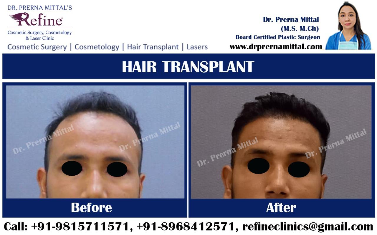Hair thinning in Ludhiana