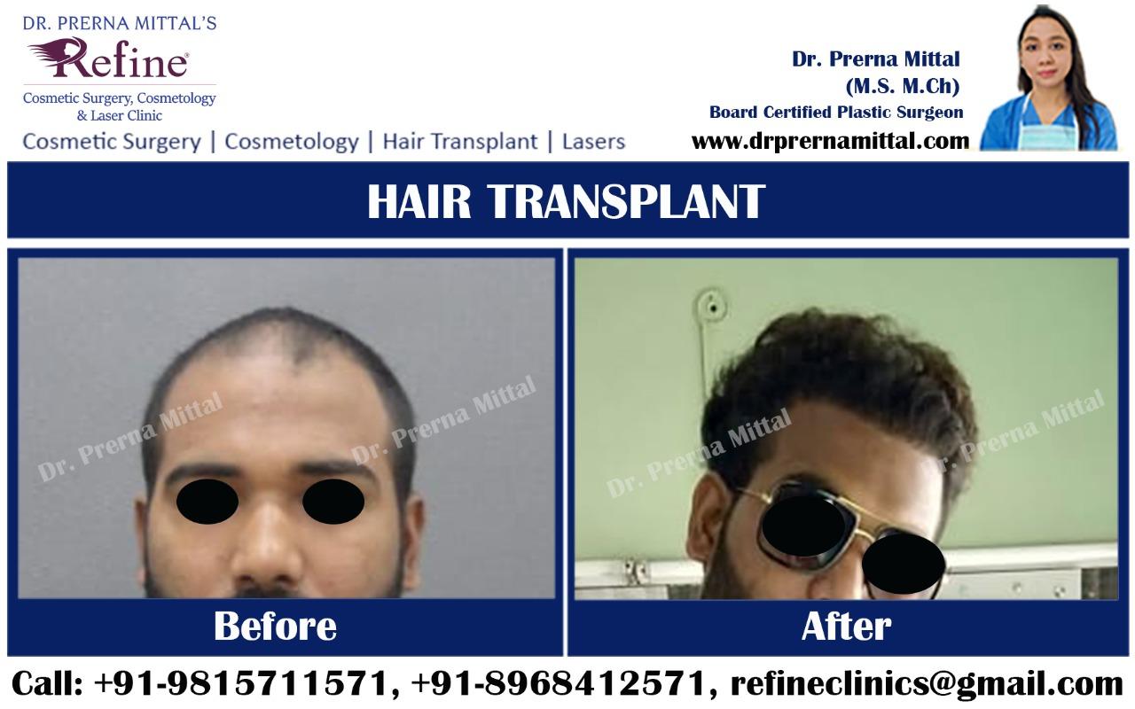 hair restoration in Ludhiana
