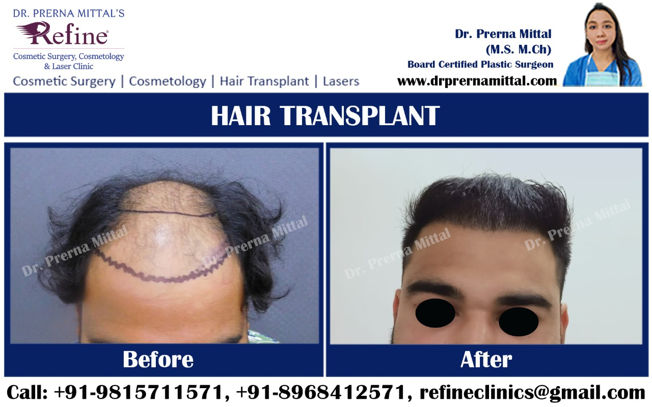 Hair Transplant specialist