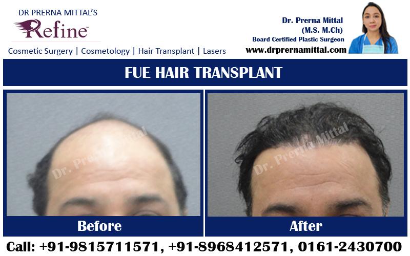 hair transplant surgery ludhiana