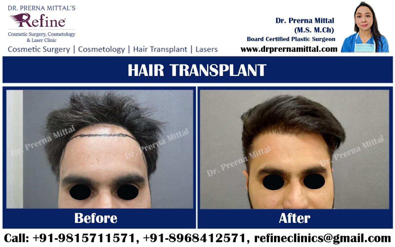 Hair Transplant in Moga