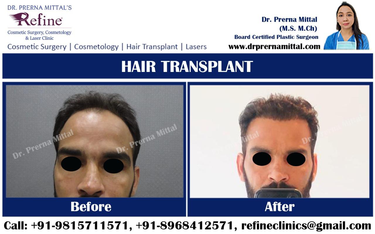 Hair Transplant surgery in Ludhiana