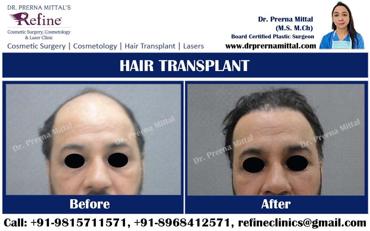 Hair Transplant cost in Punjab