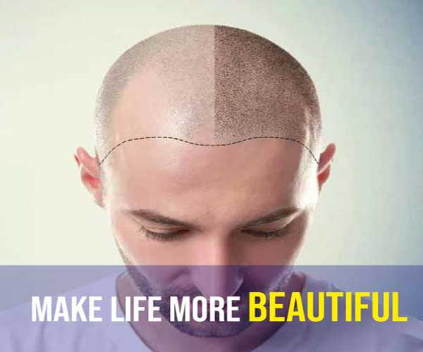 Hair Transplant in ludhiana, punjab