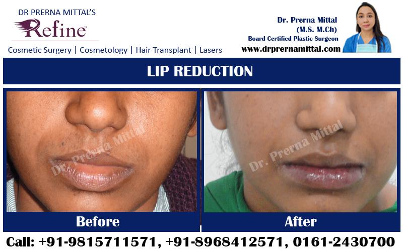 Lip Reduction in ludhiana