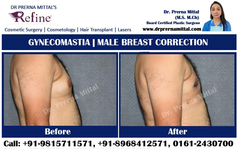 Gynecomatia surgery in ludhiana