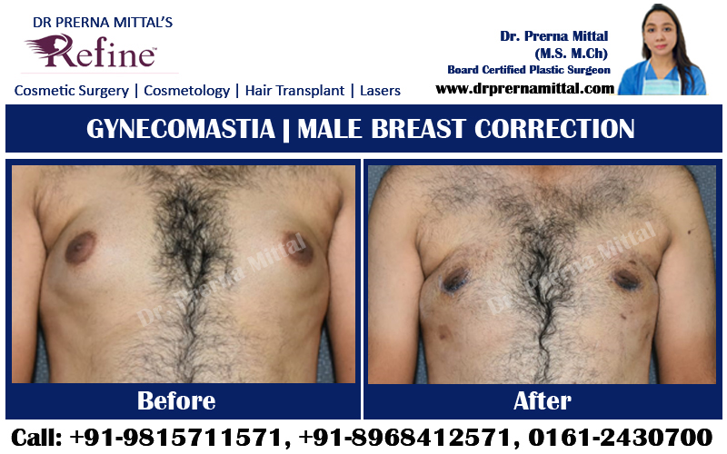 male breast correction ludhiana, punjab
