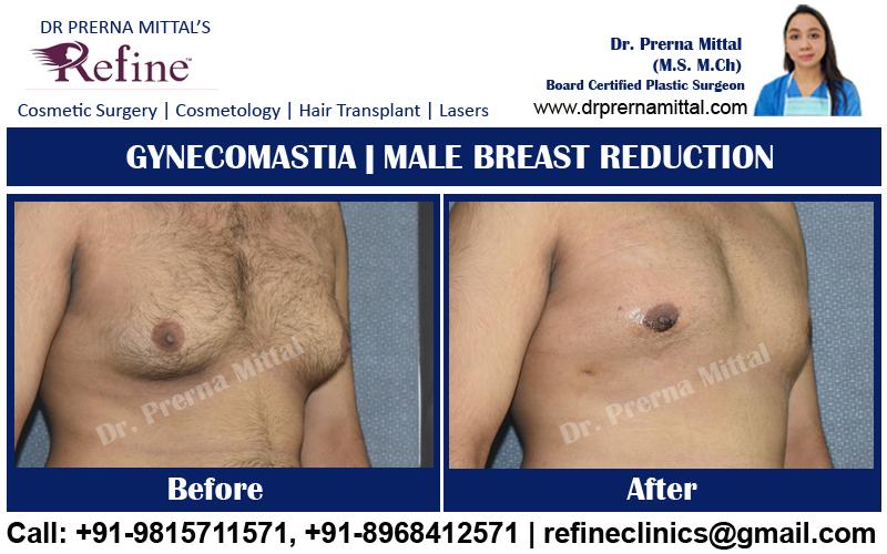 man boobs surgery in India