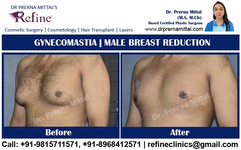 man boobs reduction in jalandhar