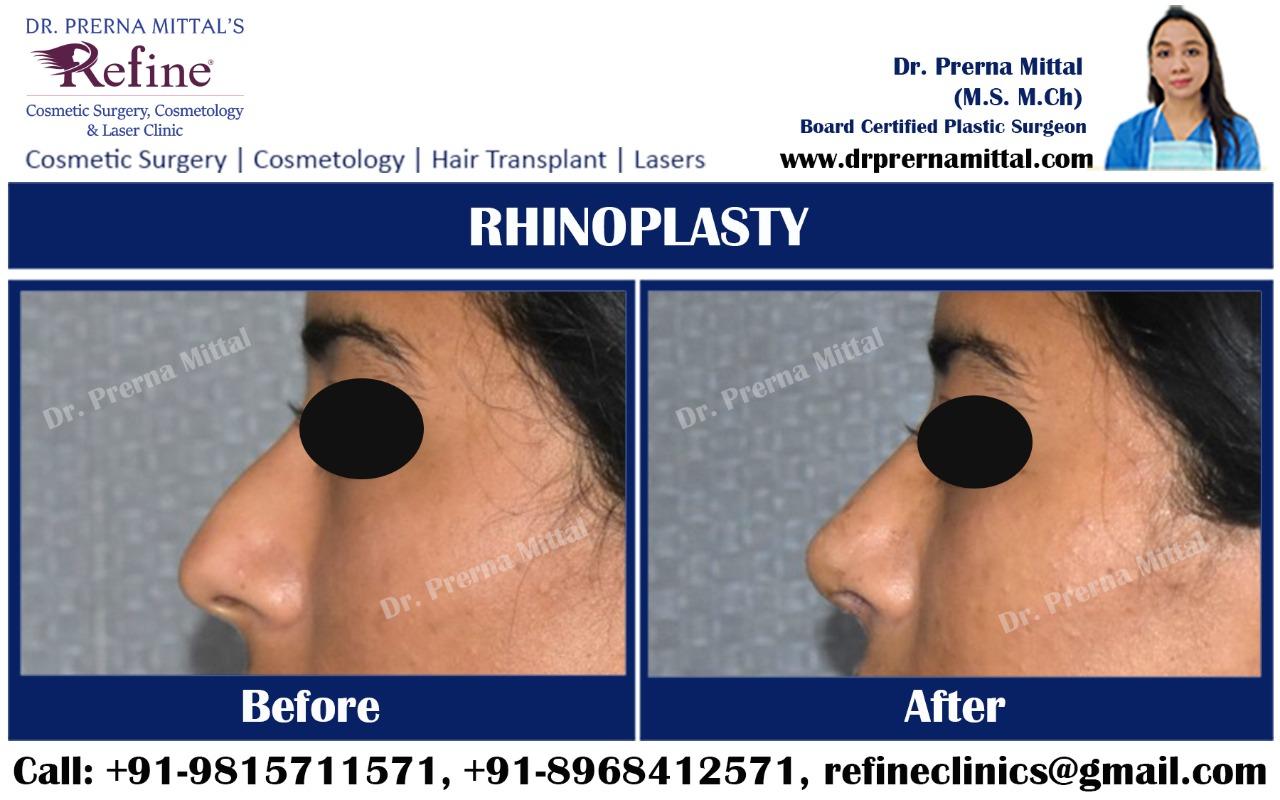 Rhinoplasty in India