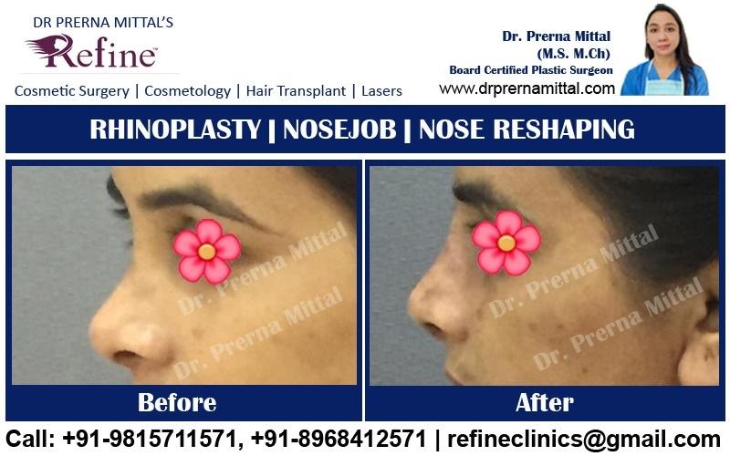 nose reshaping in punjab