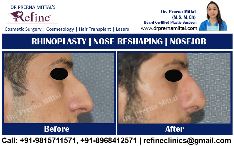 non surgical nose reshaping in India