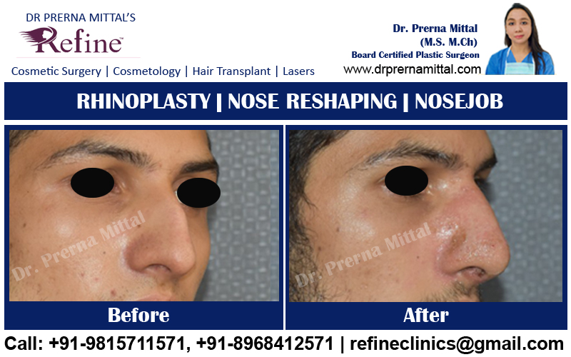 non surgical rhinoplasty cost in Punjab