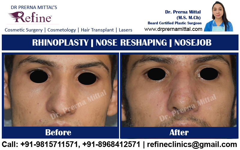 Non surgical Nosejob in Punjab