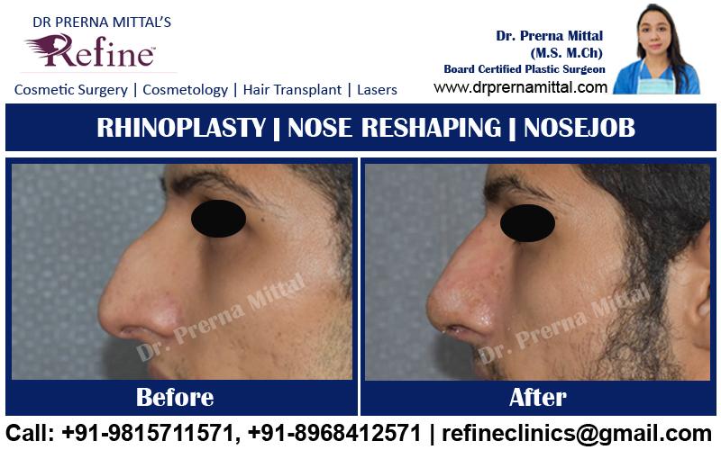 Non surgical Nosejob in India