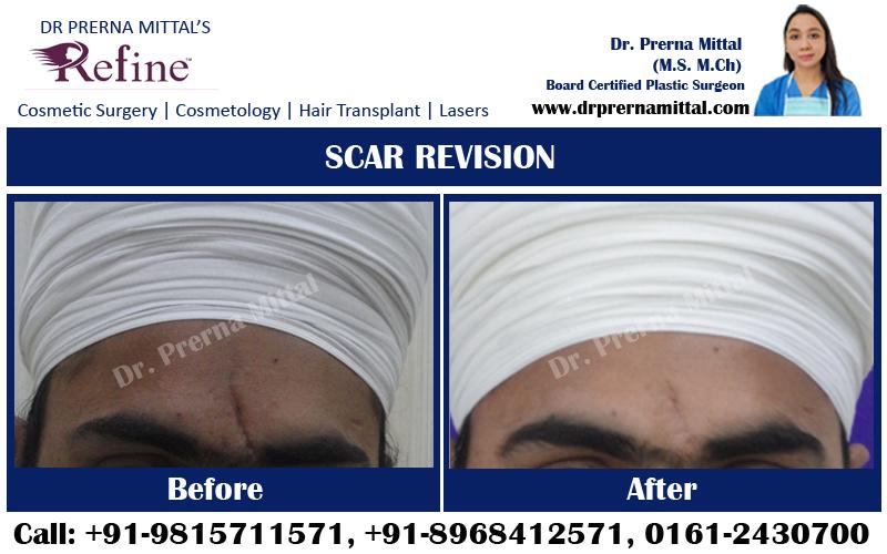 scar revision in punjab