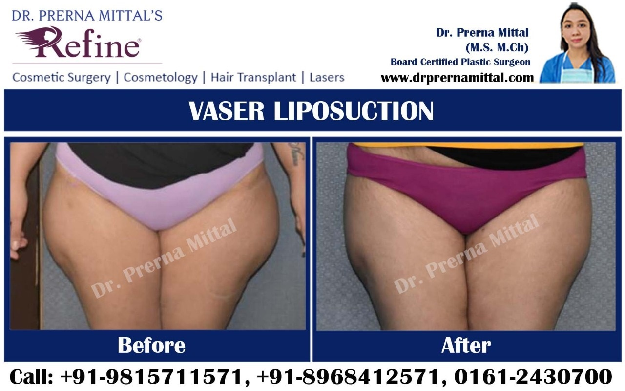 liposuction for thighs in punjab