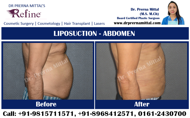 liposuction for tummy in punjab